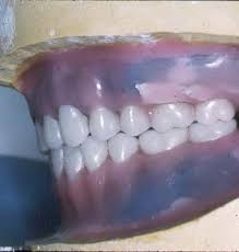 teeth setting clinical complete dentures