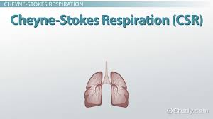 Types Of Breathing Patterns Kussmaul Breathing Cheyne Stokes Respiration Biots Respiration