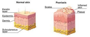 Scalp Psoriasis Treatment 2018 Top Dermatology Dermatologist Nyc