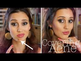 how to cover a pimple flawlessly