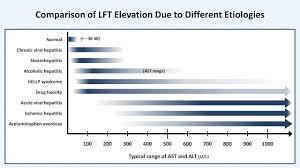Interpretation Of Lfts Liver Function Tests