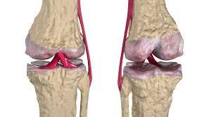 Image result for घुटनो का दर्द