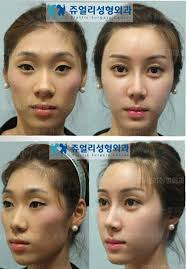 korean celebrity plastic surgery before after always interesting what you can find when you type in