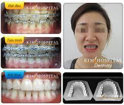 Kết quả hình ảnh cho hình ảnh sau khi niềng răng