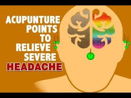 Headache Acupressure Points Chart Acupuncture Points To Relieve Severe Headache