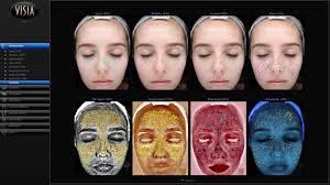 Skin Analysis Skin Assessment Newcastle The Mayah Clinic