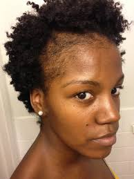 Baldness Hair Style natural hair thinning edges how to grow edges and bald spots 7971 by wearticles.com