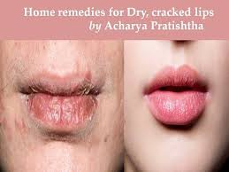 home remes for ed lips dry