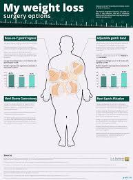 Sleeve Surgery Weight Loss Chart Best Weight Loss Surgery Options Chart Graph Infographics