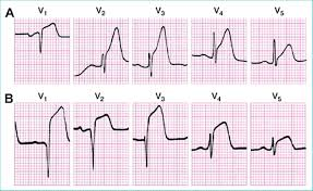 Chest Leads From A Patient With Acute Anterior St Segment Elevation