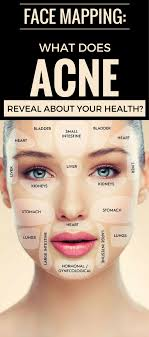 face mapping what does acne reveal about your health