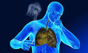 Влияние курения на дыхательную систему как восстановить Влияние курения на органы дыхания