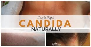 How to Fight Candida Naturally