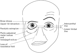 lower motor neuron palsy