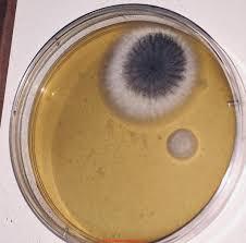 Petri Dish Bacteria Identification Chart Mold Identification Photographs Of Mold Growing On Petri