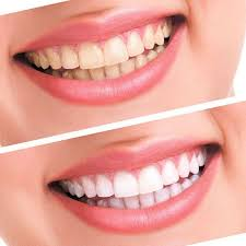 at home teeth whitening kit with 44 peroxide