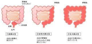 潰瘍 性 大腸 炎 症状 初期