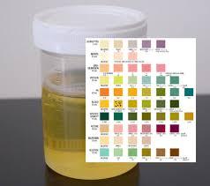 Toddler Urine Colour Chart Uti In Children Empem Org