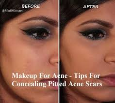 makeup for acne tips for concealing pitted acne scars acne pit scars acne makeup