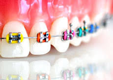 Braces Orthoclinic
