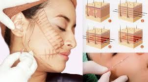 metode tanam benang thread lift klinik kecantikan natasha skin care harga paket