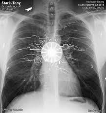 Chest x-ray of <b>Tony Stark</b> (<b>Iron man</b>) | Radiology Case ...