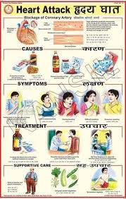 Heart Attack Chart Heart Attack For Prevent Diseases Chart