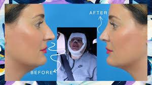 onderkin liposuctie