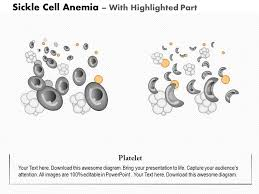 Sickle Cell Anemia Pie Chart 0914 Sickle Cell Anemia Medical Images For Powerpoint