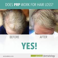 prp hair restoration results