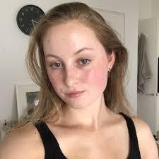 Cassie Doyle | Skin Care Junkie
