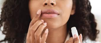 how to treat chapped lips upmc healthbeat