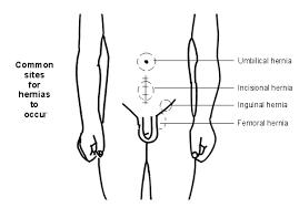 testicular rupture symptoms. hernia testicular rupture symptoms y