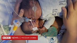 Недоношенного младенца спасли объятия брата-близнеца ...