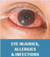 Eye Injury - Springfield, Illinois | Vision Care Associates