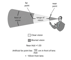 Essilor Computer Lens Fitting Chart Optician