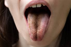 4 common tongue problems treatment and