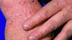 7 types of eczema symptoms causes