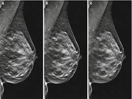 Digital breast tomosynthesis bilateral