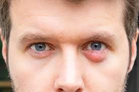 tiny white p inside lower eyelid
