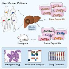 Liver Tumor Size Chart Organoid Models Of Human Liver Cancers Derived From Tumor