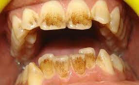 How to remove and prevent specialty coffee stains? How To Remove Coffee Stains From Teeth Coffee Stain Removal Coffee Staining Teeth Stain Remover