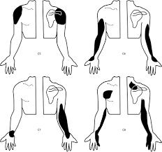 Somatic Referred Pain Springerlink