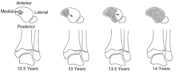 Growth Plate Closure Chart Ankle Fractures Pediatric Pediatrics Orthobullets