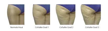 Cellulite, fettabsaugung und Nachbehandlung mit Powerplate