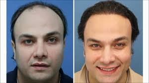 hair transplant how it works do hair transplants work award winning surgeons youtube