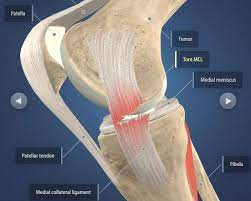 after acl mcl tears surgery
