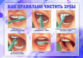 Болят все зубы сразу что это причины лечение профилактика Как правильно чистить зубы