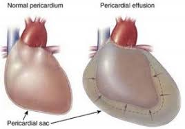 pericardial sac cardiac tamponade signs and symptoms causes pathology diagnosis