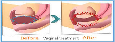 Bilderesultat for vaginal relaxation syndrom